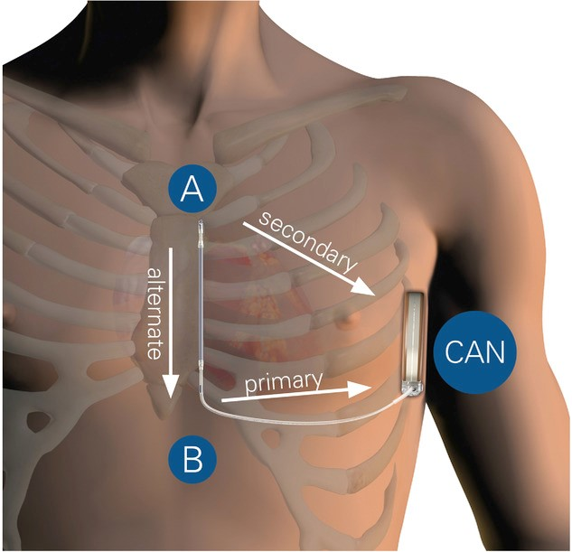 Eligibility for subcutaneous implantable cardioverter defibrillators in the adult congenital heart disease population.